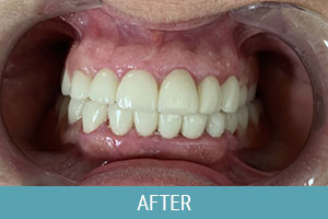 After Dental Treatment 02